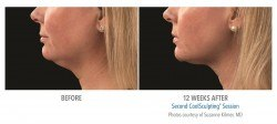CoolSculpting beore & after