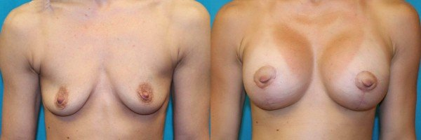 This patient had a bilateral breast augmentation with a circumvertical mastopexy.