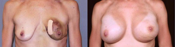 Breast reconstruction beore & after