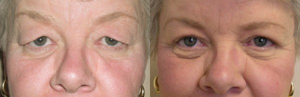 Blepharoplasty before & after