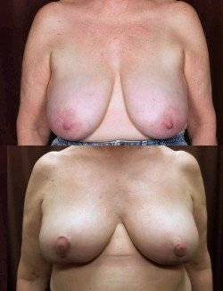 Breast Reduction 1 Vertical