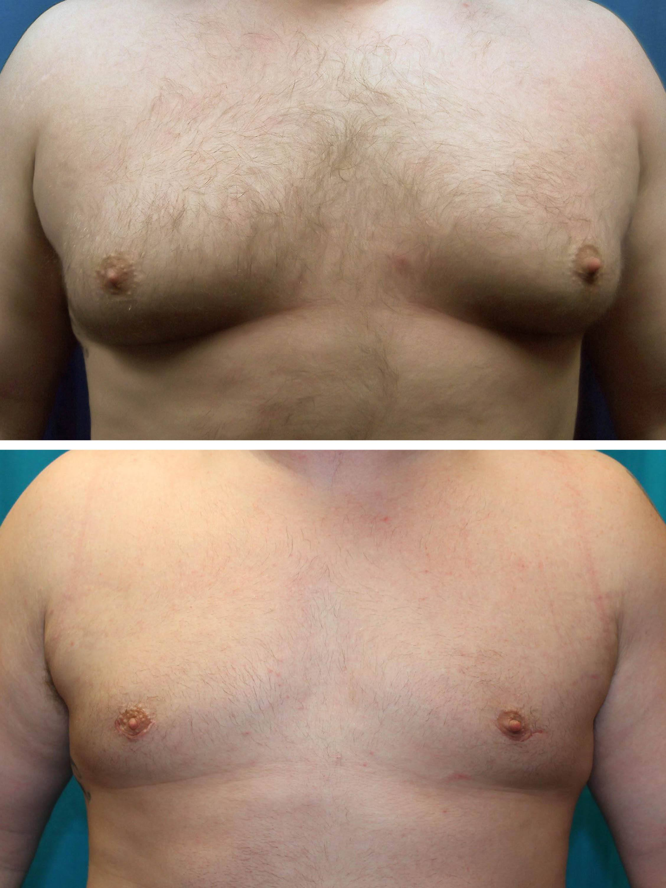 Fox Valley Plastic Surgery Male Breast Reduction Gynecomastia