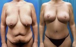 Cambio de imagen para mamás antes y después
