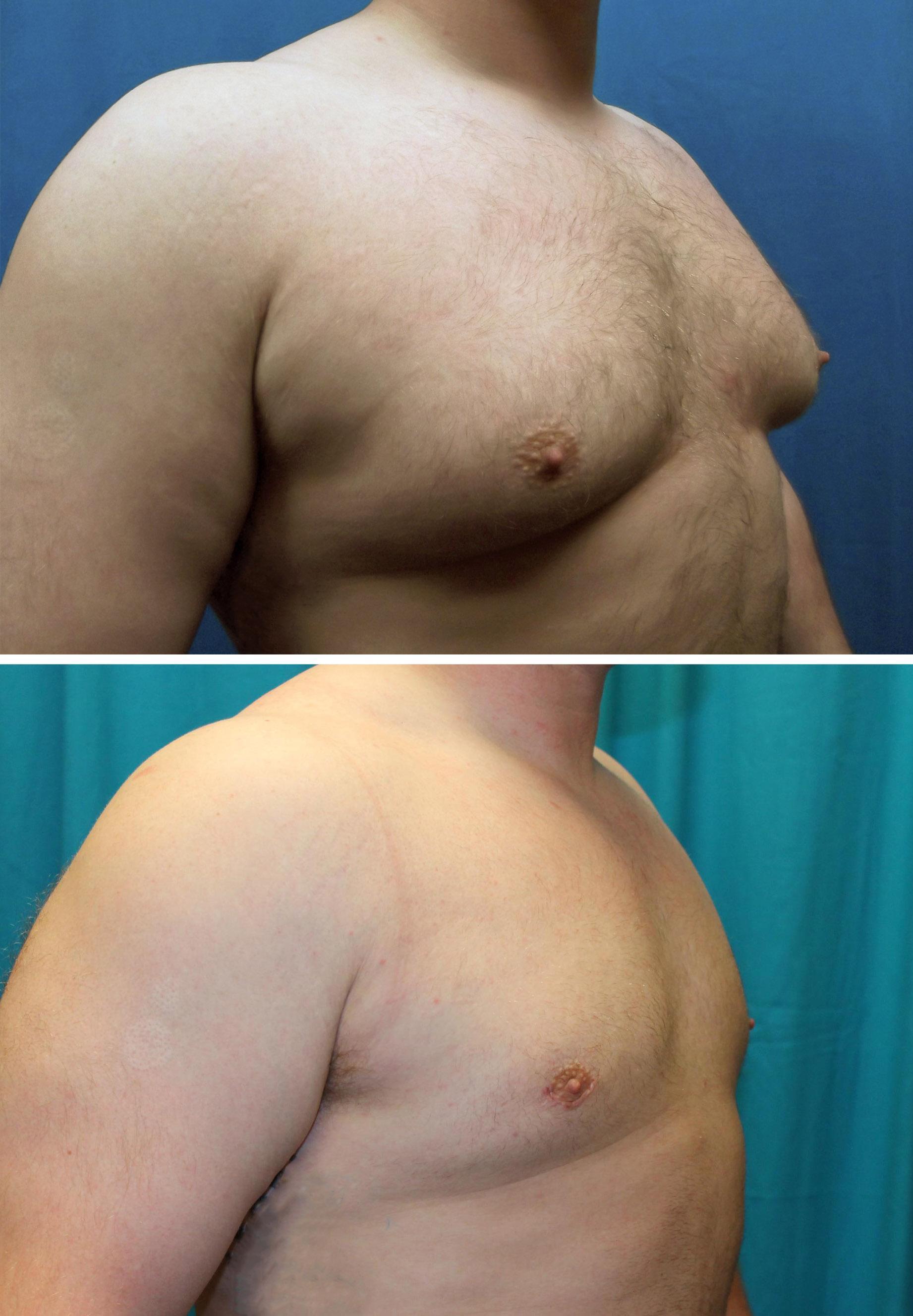 Severe male breast enlargement