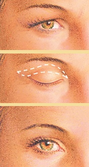 Eyelid surgery incision graphic