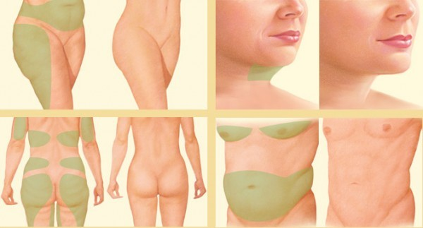 liposuction locations