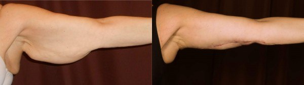 Arm Lift Before & After