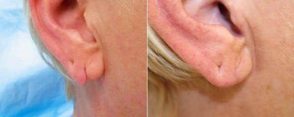 Earlobe repair before & after