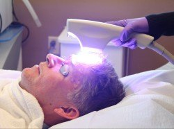 Patient receiving Levulan® Photodynamic Therapy