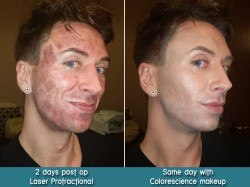 Profractional with Colorescience