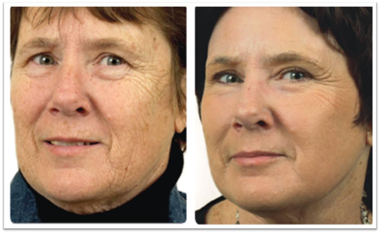 Advanced Laser Skin Resurfacing For Oshkosh And Appleton