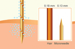 Aquagold needle thickness