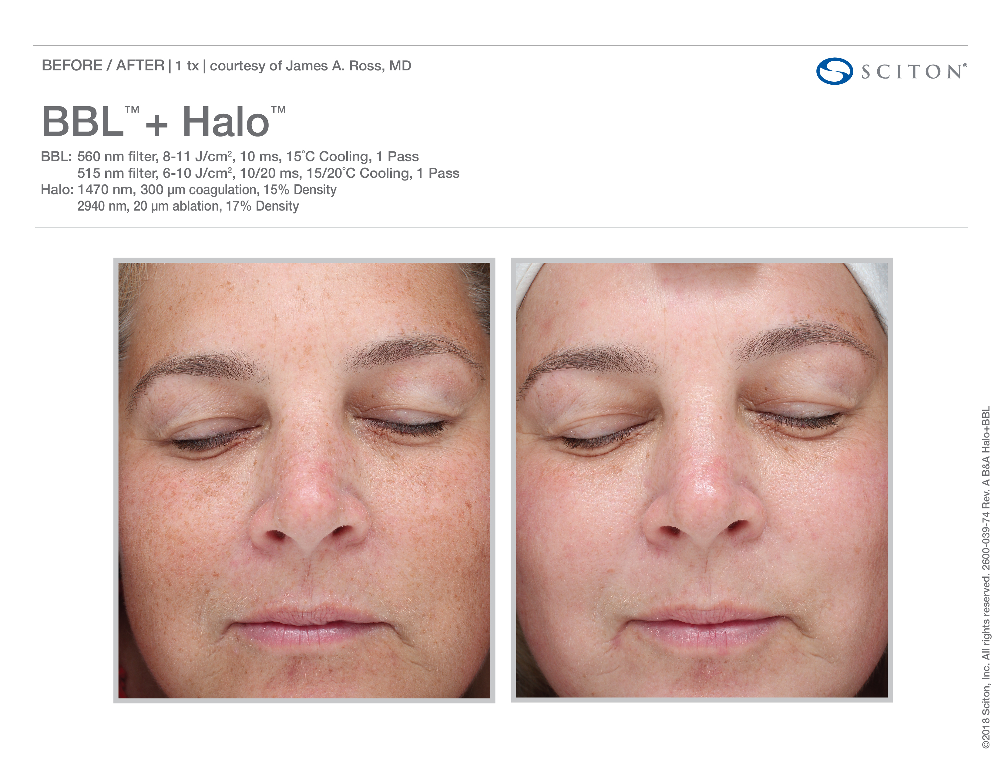 Fox Valley Plastic Surgery | Halo™ Laser Treatments