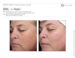 BBL + Halo before & after