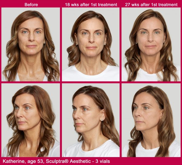 Sculptra test patient