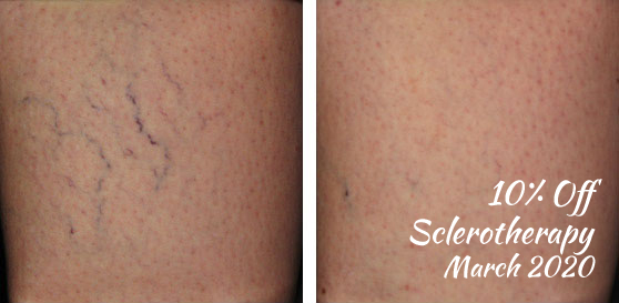 10% off sclerotherapy