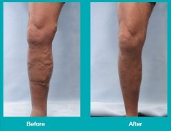 Before and After Leg Images