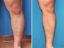 Before and After photos of legs
