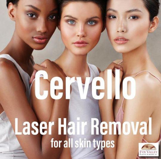 3 women for laser hair removal