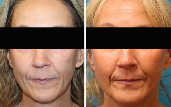 6 months after 1st treatment