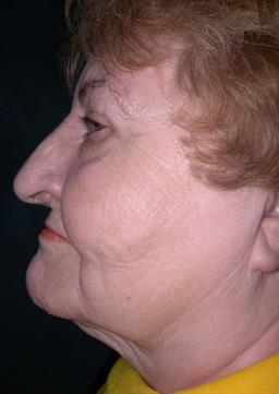 Left side view of neck before neck lift