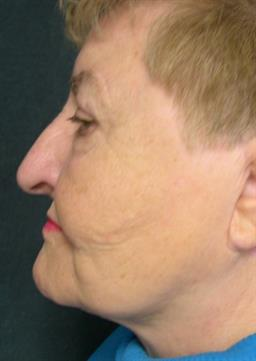 Left side view of neck after neck lift